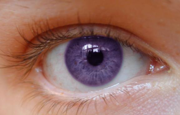 Lightening Eye Colour